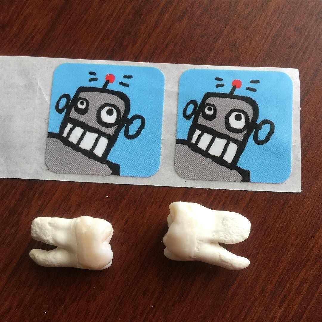 I FOUND MY WISDOM TEETH TODAY! Weird story... This morning I was going through my first aid kit looking for stuff to get rid of and found my teeth rolled up in a ziplock at the bottom of the bag. I had no clue they were in here. They were yanked 6 months before my 2005 ride and I convinced the Dentist to let me take them home all gross and bloody. I soaked them in bleach for 2 days to get them looking beautiful. I even carried them across America on my 2007 trip and had no idea!! Now I just need to find a hippie to make me a necklace, luckily crossing the Appalachian trail is only a few days away! #wisdomteeth #coast2coast #itsgoingtobealongtrip